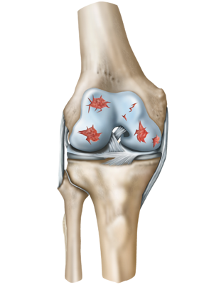 Diagram of an arthritic knee