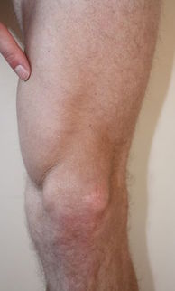 This is Vastus Medialis Obliquus (VMO)
