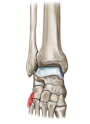 Avulsion Fracture Of The 5th Metatarsal