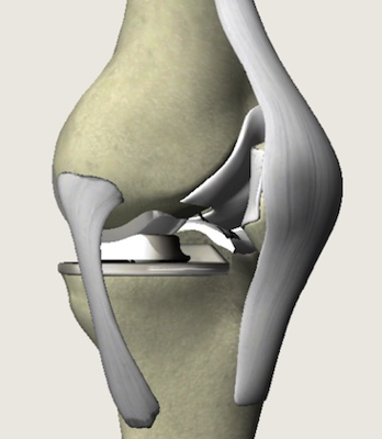 diagram 3 of knee joint