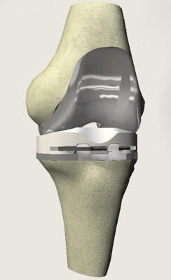 diagram of knee joint with replacement